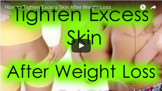 How to Tighten Excess Skin Fast After Weight Loss